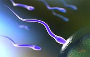Komputerowa analiza nasienia - Seminogram
